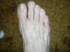 Нога после каталки
