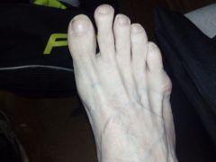 Нога до каталки